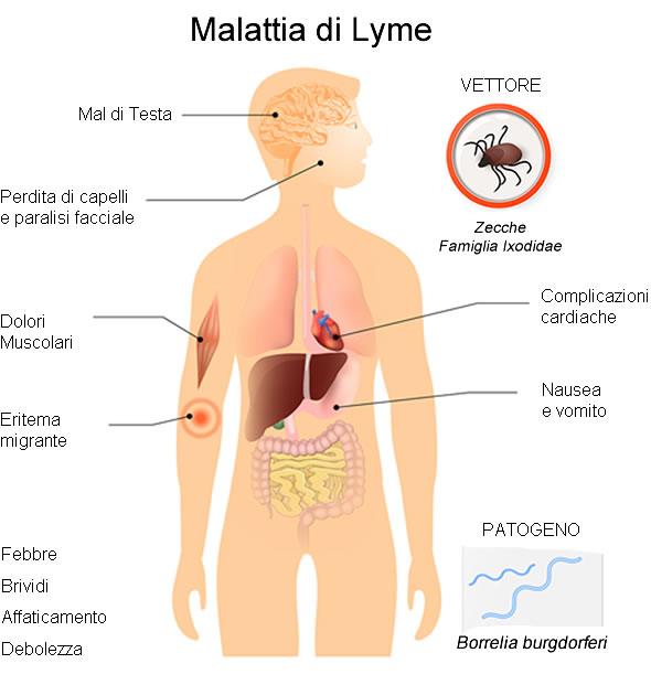 malattia-lyme-sintomi